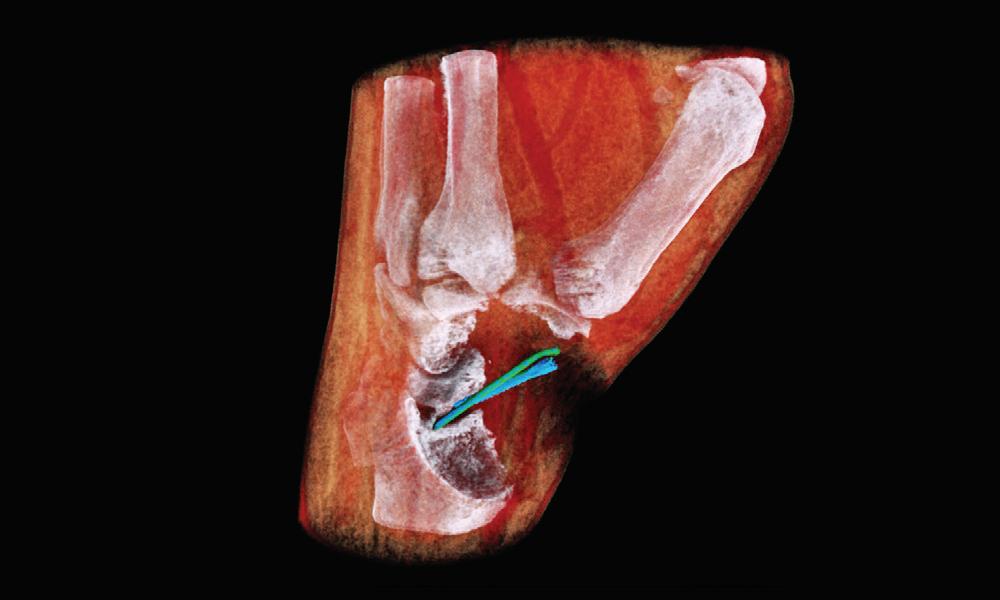 환자 손목 3D 이미지